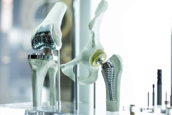 Low-cost alloys would pave the way for affordable medical implants and prosthetics. Monstar Studio/Shutterstock